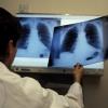 Назаровские медики подвели итоги акции по борьбе с туберкулезом