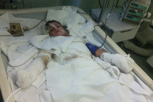В Красноярском крае из-за удара током 9-летнему мальчику ампутировали часть руки