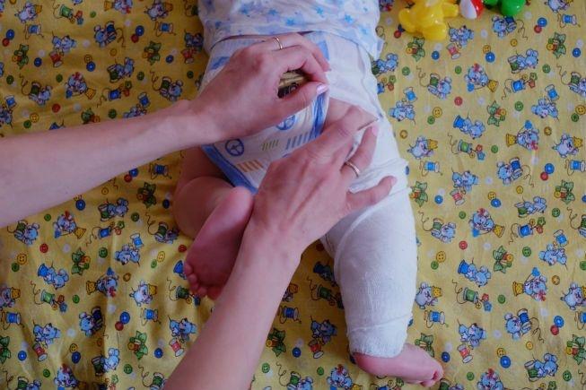 ВАчинске нетрезвый мужчина избил годовалого ребенка исломал ему ногу