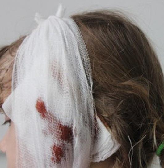 Девушка откусила ухо приятельнице около ночного клуба вМинусинске